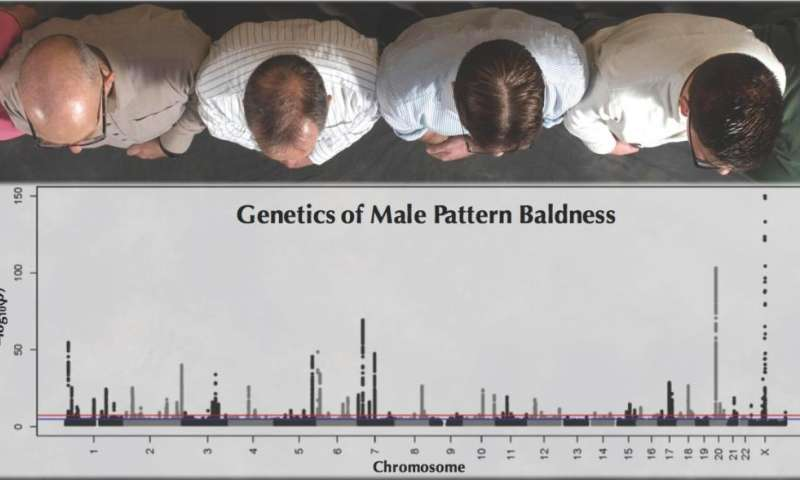 Study of 52,000 men uncovers the genetics underlying male pattern baldness