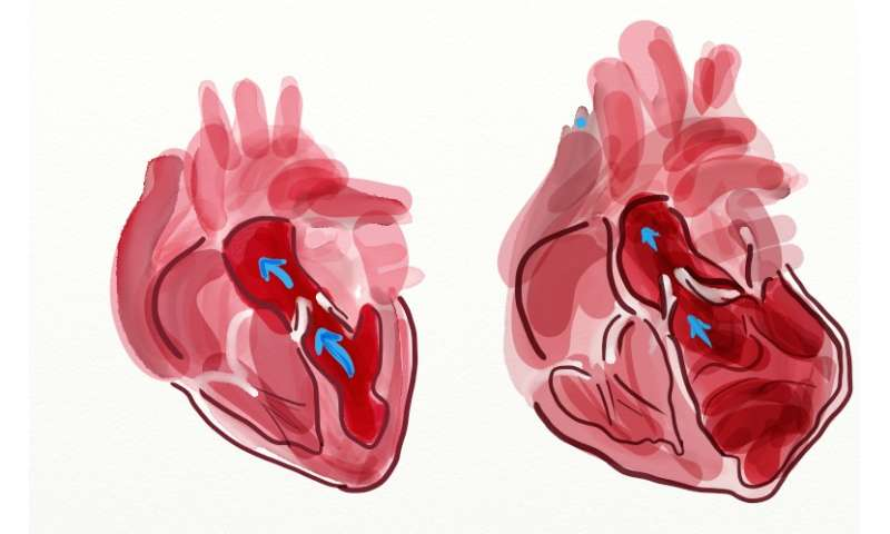 Study on transplanted hearts reveals risk genes for cardiovascular diseases