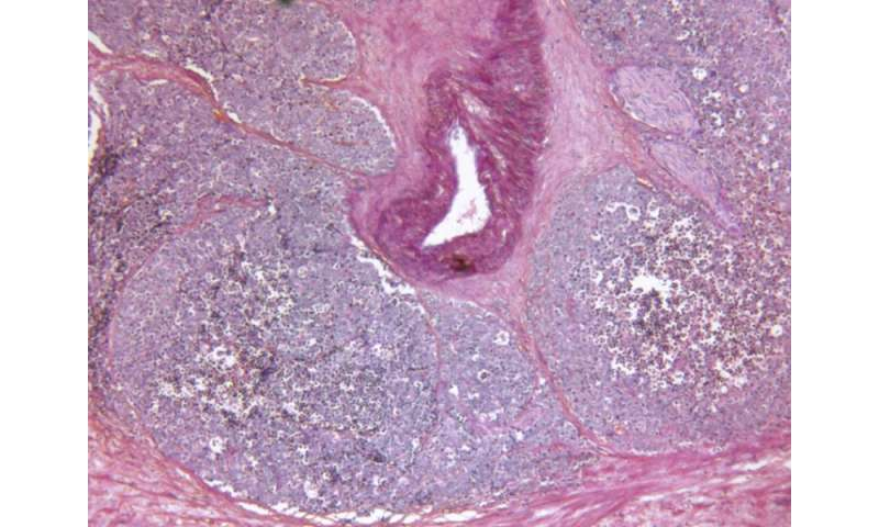 Substantial increase in costs with metastases in prostate CA