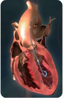 Successful cardiogenic shock treatment using a percutaneous left ventricular assist device