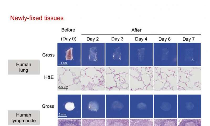 Superior pathological diagnosis using transparent tissues