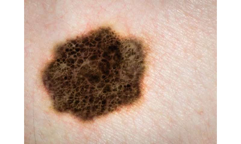 Surgery may be best for advanced melanoma