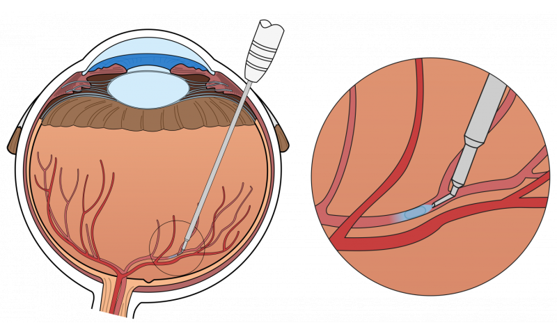 Surgical eye robot performs precision-injection in patient with retinal vein occlusion