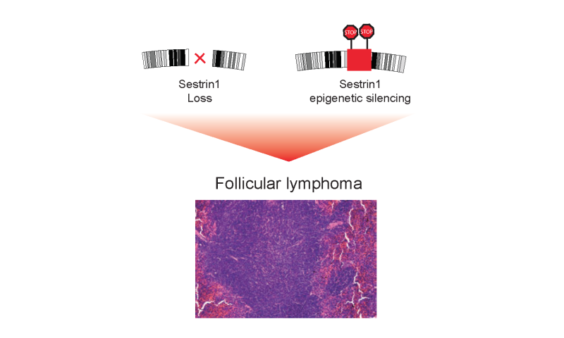The gene behind follicular lymphoma