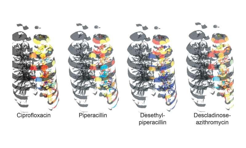 The microbial anatomy of an organ
