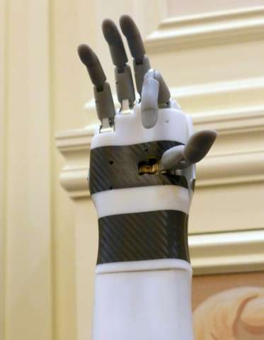 "The ""prosthetic hand"" from BrainRobotics, controlled by signals sent from the residual muscles on an amputee's limb, i"