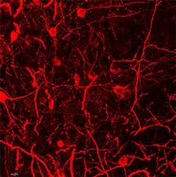 Tourette-like tics vanish in mice treated with histamine