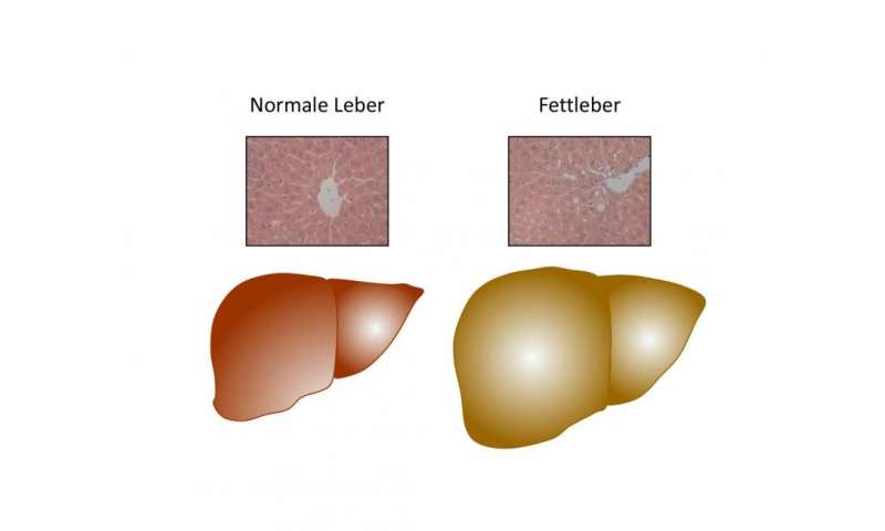 Trigger for fatty liver in obesity found