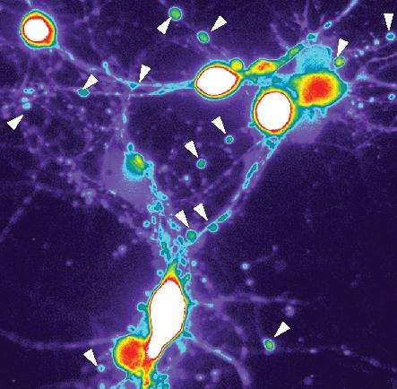 Unraveling Alzheimer's: New study documents how brain cells go bad