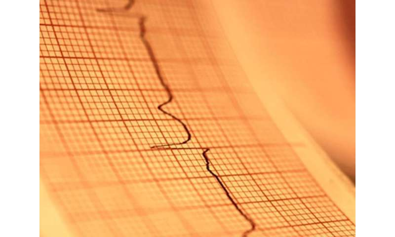 USPSTF reviews use of ECG for preventing A-fib, CVD events