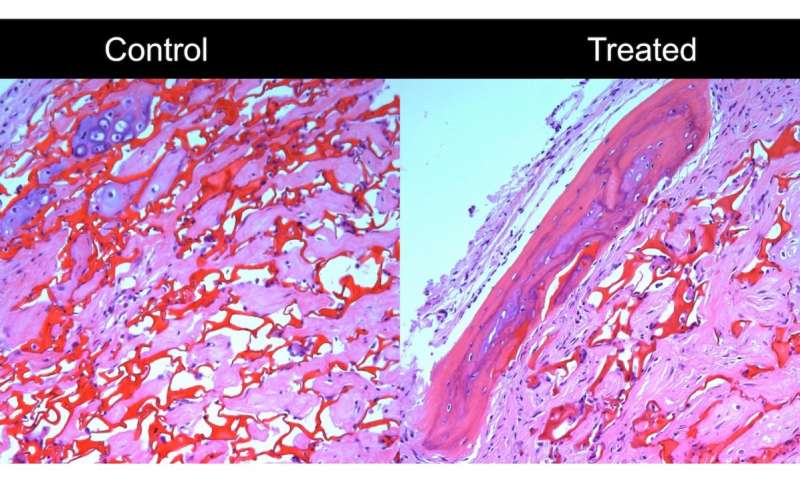 UW scientists find key cues to regulate bone-building cells