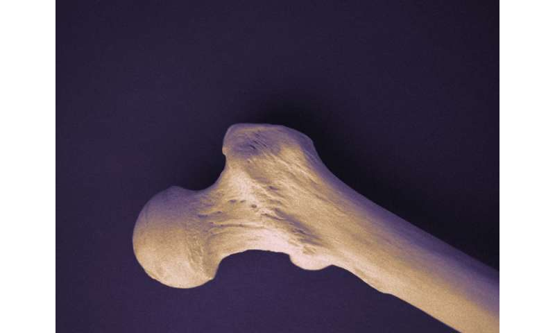 Venlafaxine use linked to bone turnover markers in older adults