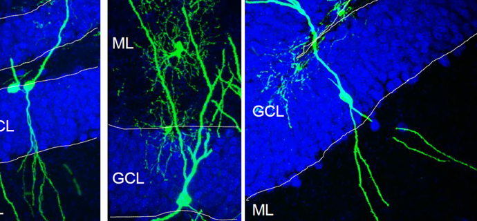 When neurogenesis goes wrong
