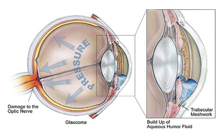 'Y' a protein unicorn might matter in glaucoma