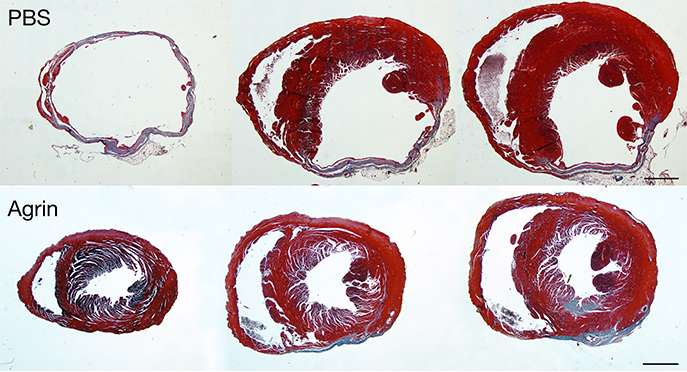 Young at heart: Restoring cardiac function with a matrix molecule