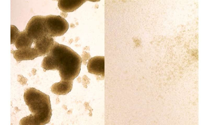 Zika virus kills brain cancer stem cells