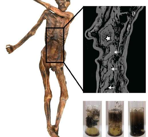 5,300-year-old Iceman's last meal reveals remarkably high-fat diet