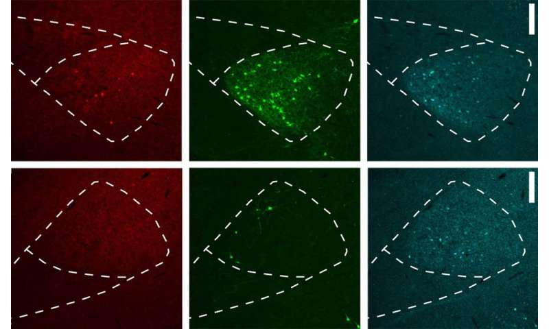 A better way to trace neuronal pathways