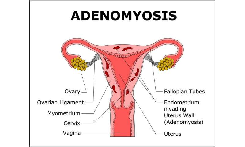 Adenomyosis causes pain, heavy periods and infertility but you've probably never heard of it