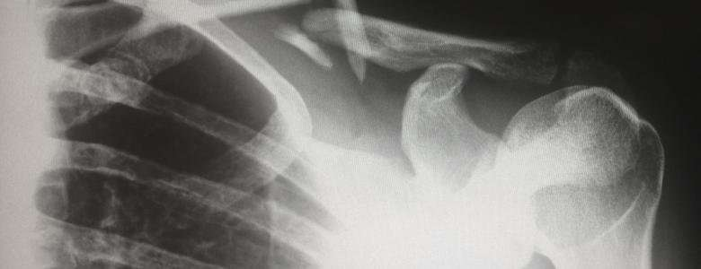 Anti Epileptic Drugs Increase The Risk Of Bone Fractures