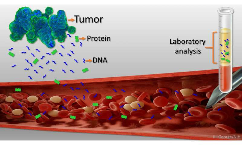 Can liquid biopsies compete with scopes and scans in cancer diagnosis?