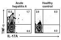 Cellular mechanism for severe viral hepatitis identified