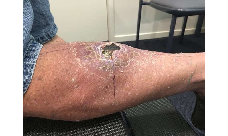 Flesh-eating bacteria cases on the rise, researchers call for urgent response