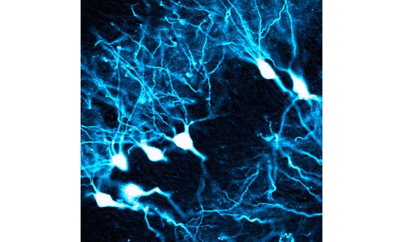 Gene therapy researchers find viral barcode to cross the blood-brain barrier