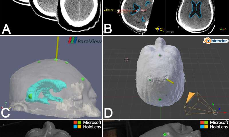 Holographic images increase accuracy of external ventricular drain insertion