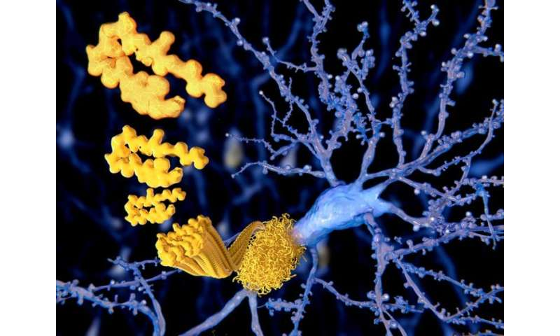 Is Alzheimer's caused by disruptions to the brain's energy supply?