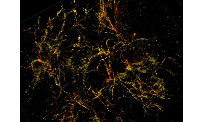 New development in 3D super-resolution imaging gives insight on Alzheimer's disease