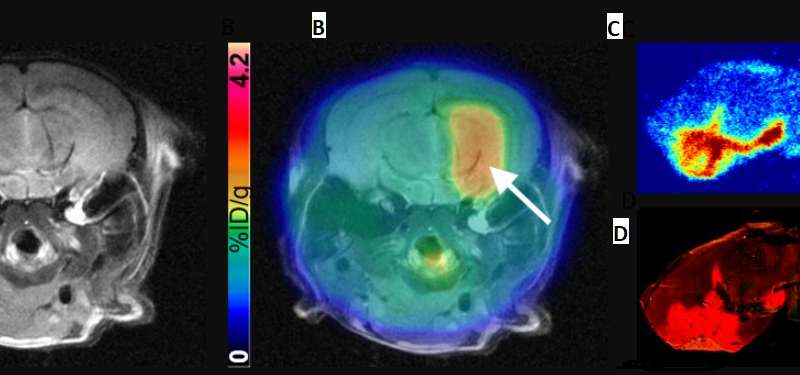 New nuclear medicine technique could help tackle brain disease