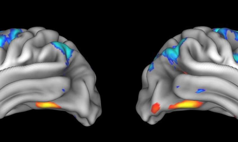 NIH releases first dataset from unprecedented study of adolescent brain development