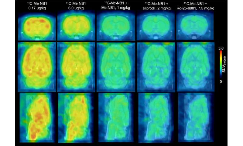 Novel PET imaging agent could help guide therapy for brain diseases