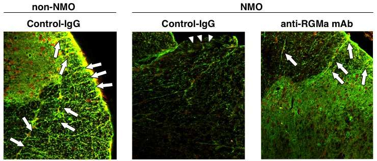 Study identifies antibody that alleviates symptoms in neuromyelitis optica in rats