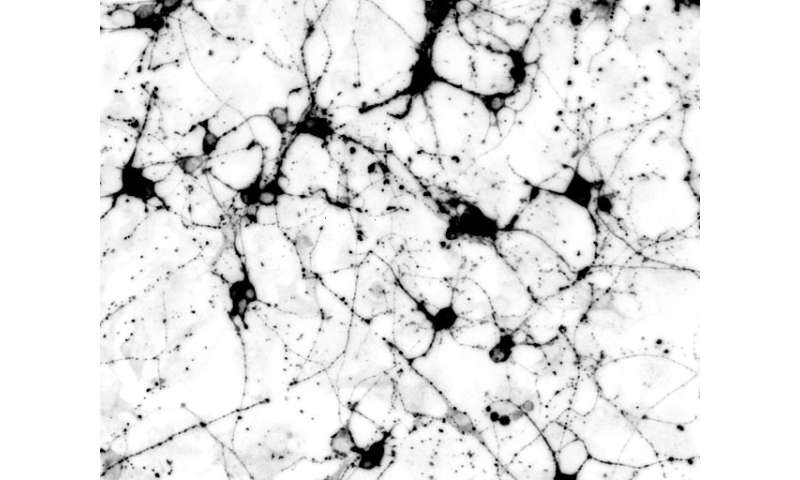 The joy of neurons: A simplified 'cookbook' for engineering brain cells to study disease