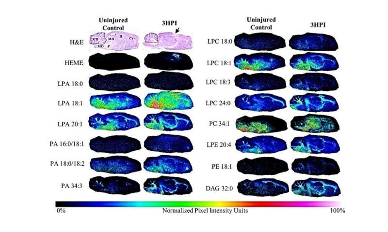 Traumatic brain injury biomarker shows promise to support rapid damage evaluation and predict outcomes