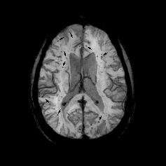 UCI researchers identify new cause of brain bleeds