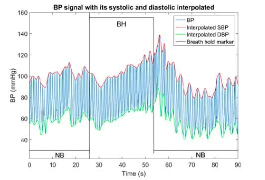**Using photoplethysmography signal for mathematical modeling of arterial blood pressure