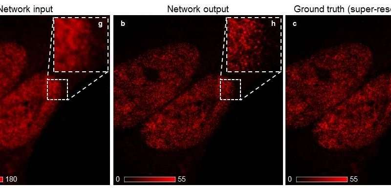 Deep learning takes fluorescence microscopy into super resolution