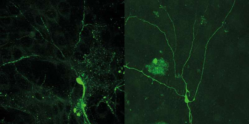 Researchers show how the spatial organization of a nerve cell ...