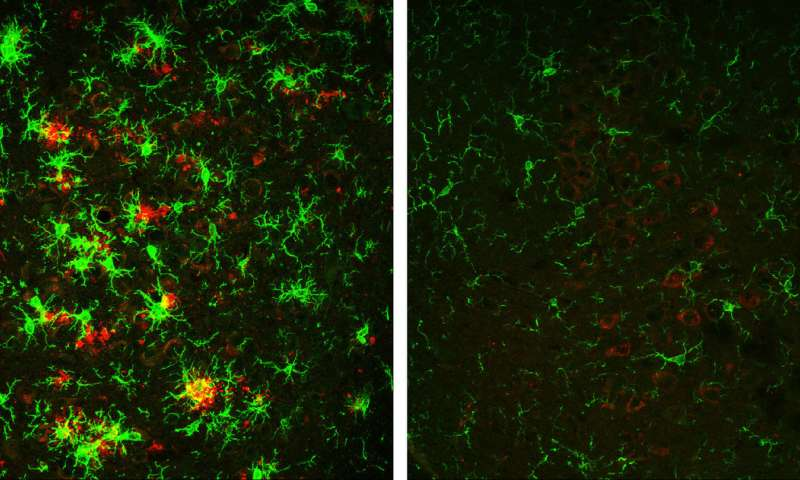Scientists Reverse Alzheimer's and Improve Cognitive Function in Mice