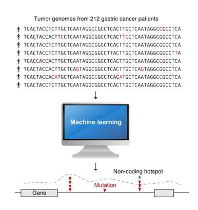 Artificial intelligence helps to pinpoint roots of gastric cancer