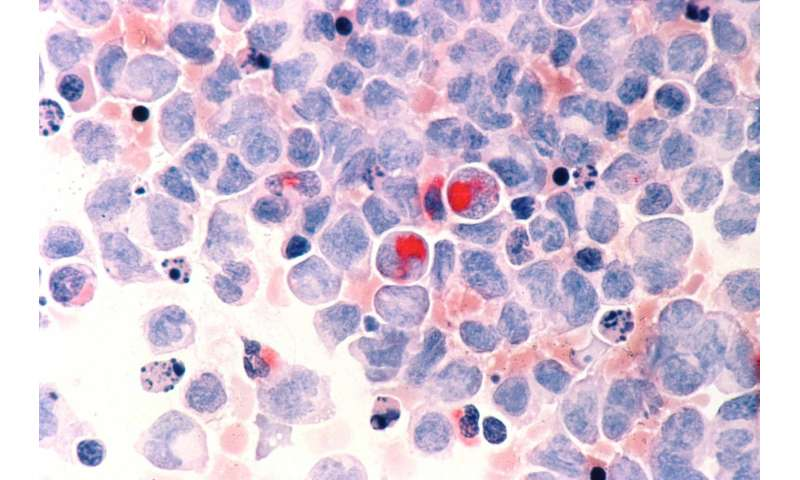 Scientists can predict rare leukaemia 8 years before symptoms begin