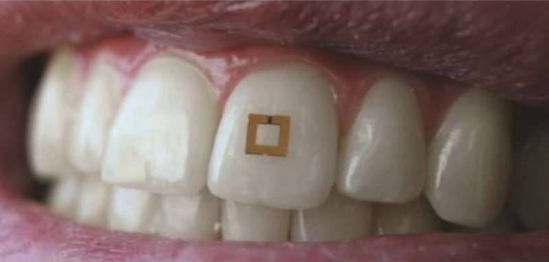 Scientists develop tiny tooth-mounted sensors that can track what you eat