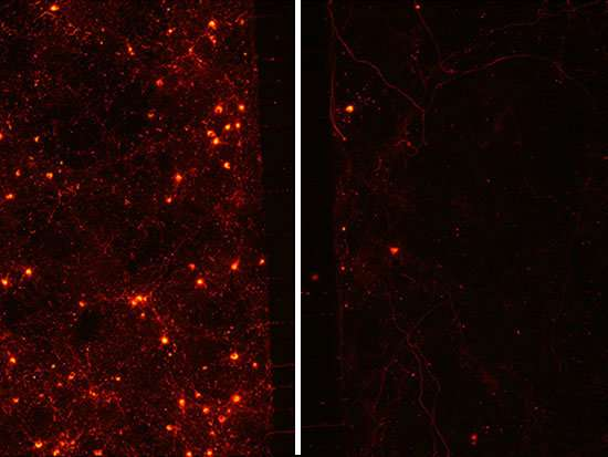 Study identifies chaperone protein implicated in Parkinson's disease