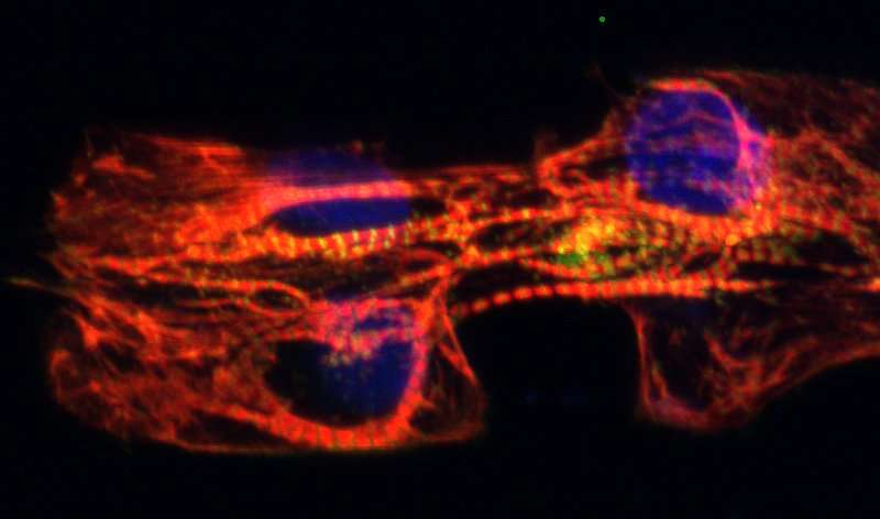 Mending broken hearts with cardiomyocyte molds