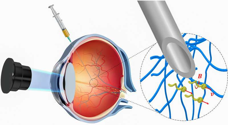 **Nanorobots propel through the eye