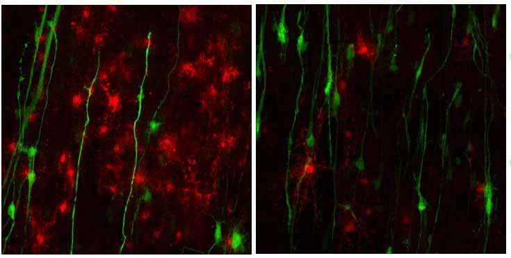 New stem cell model can be used to test treatments for a rare nervous system disorder