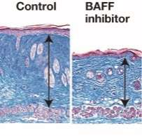 Regulatory and effector B cells control scleroderma